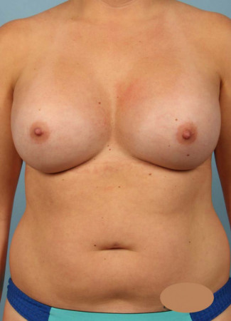 After 425 cc saline augmentation by Dr. Kavali, under the muscle, scar in the crease