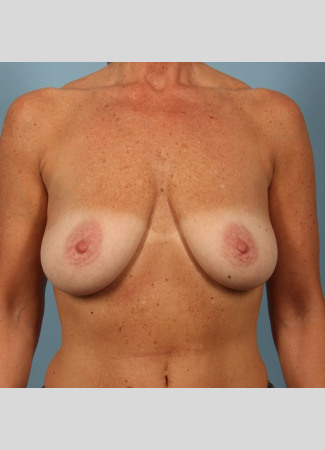 "Before This 50 year old Atlanta woman chose Allergan silicone gel implants, 300 cc, for her breast surgery.  She wanted to have more fullness in her upper breasts, as well as overall ""lifted"" breasts. So Dr. Kavali did a breast lift with implants to achieve her goals. She is shown about 6 months after surgery.  Her scars will continue to fade over time."