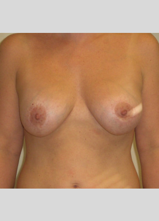"After This woman in her mid-30s desired breast augmentation (implants) and a lift. She had some breast asymmetry, so a 371 cc gel implant was used on the left and a 339 cc gel implant was used on the right. Her ""after"" photos were taken about 4 years after her surgery."