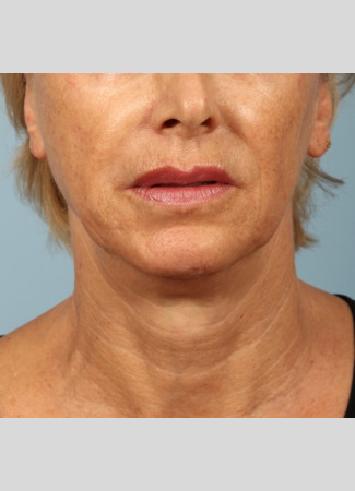 After A tighter, lifted neck and jawline after Ultherapy at Kavali Plastic Surgery