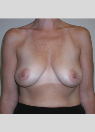 "Before This Georgia woman wanted fuller, lifted breasts.  She chose 371 cc gel implants, and had a mastopexy (lift) at the same time.  Her ""after"" photos were taken about 5 years after surgery."