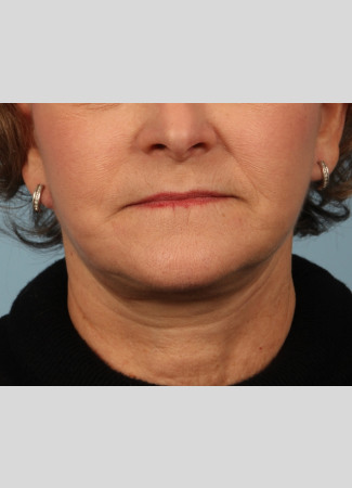 After This woman is shown about 6 months after her facelift and necklift with Dr. Kavali.