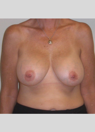 "After This Georgia woman wanted fuller, lifted breasts.  She chose 371 cc gel implants, and had a mastopexy (lift) at the same time.  Her ""after"" photos were taken about 5 years after surgery."