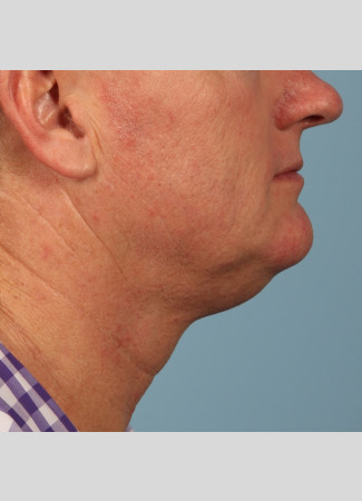 Before Results after 2 Kybella Treatments