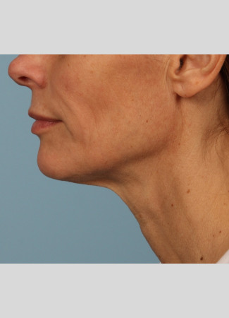 Before A beautiful necklift and facelift with Dr. Kavali to tighten and define the jawline, neck, and lower face.