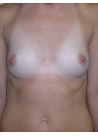 "Before This 37 year old female chose 425 cc silicone gel implants for her augmentation.  Her ""after"" photos were taken about 2 years after her surgery."