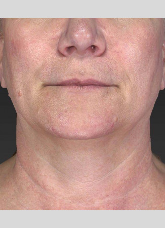 After Ulthera gave this woman an amazing result!  No other treatments were done.  Ulthera alone is responsible for this tighter, slimmer neck and jawline!