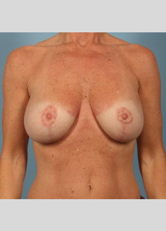 "After This 50 year old Atlanta woman chose Allergan silicone gel implants, 300 cc, for her breast surgery.  She wanted to have more fullness in her upper breasts, as well as overall ""lifted"" breasts. So Dr. Kavali did a breast lift with implants to achieve her goals. She is shown about 6 months after surgery.  Her scars will continue to fade over time."