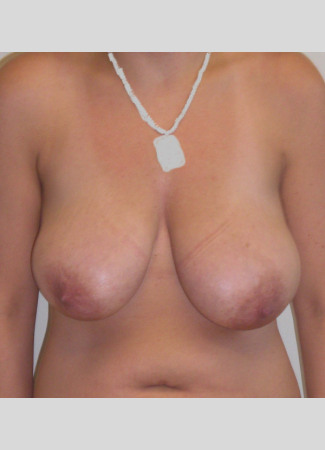 Before This woman in her 30s wanted smaller, perkier breasts.  A short scar breast lift from Dr. Kavali did just that for her.