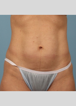 Before This Atlanta woman chose CoolSculpting to contour her abdomen. She is shown 2 months after her treatment was completed.