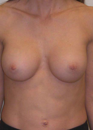 After This 30 year old female desired breast augmentation, but didn't want to be too large for her frame.  She also had some mild asymmetry, so she had a 240 cc implant for larger side and a 304 cc implant for the smaller.  Her