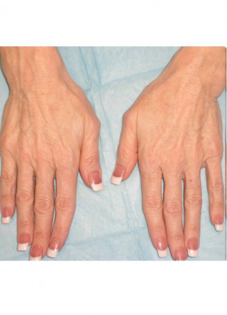 Before Before and After 1 syringe of Radiesse to each hand.  Radiesse is a collagen-stimulator and filler that plumps up hollows–great for hands and faces!