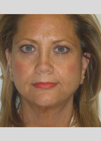After This Atlanta woman is shown about 6 months after her facelift with Dr. Kavali.  This surgery tighten the jawline and neckline and lifts the lower face.