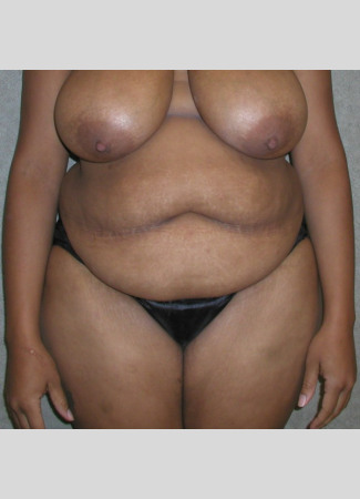 Before This Georgia mom had an abdominoplasty (tummy tuck)  to remove loose skin and tighten her tummy muscles. She also had liposuction of her waist at the same time.  She is shown about 6 years after surgery.