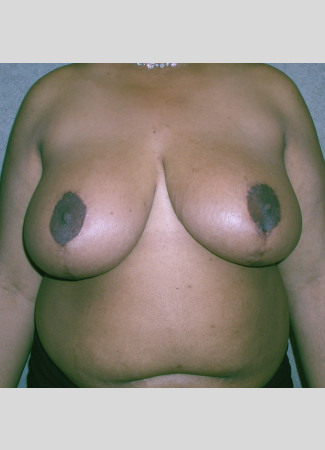 "After This 31 year old female wanted smaller, lifted breasts, as well as relief from back, neck, and shoulder pain. Dr. Kavali performed a SPAIR Short Scar Breast Reduction, removing about 900 grams per breast. Her ""after"" photos were taken about 6 months after surgery."