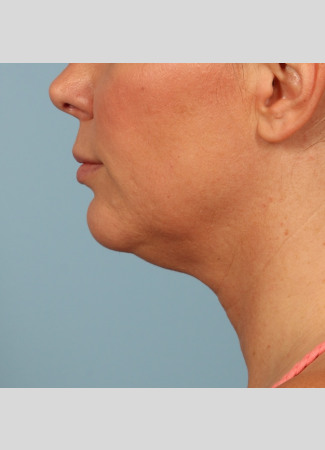 After Results after 3 Kybella treatments