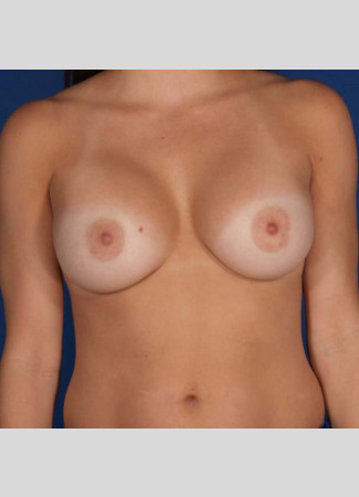 "After This 30 year old female chose a 234 cc silicone gel implant for her breast augmentation, and Dr. Kavali matched the opposite side using a 260 cc silicone gel implant. Her implants are beneath the muscle and were placed through the inframammary crease (breast fold incision).  Her ""after"" photos were taken about 1 year after surgery."