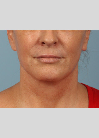 After A smoother, tighter jawline, neck and lower face after a facelift and necklift.  The after photo is about 1 year after surgery.