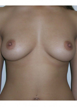 Before This 23 year old female chose 339 cc silicone gel implants for her breast augmentation. The implants were placed beneath the muscle through an incision in the inframammary crease (fold).  Her