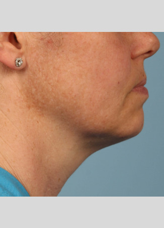 After Shown after a single treatment with Kybella