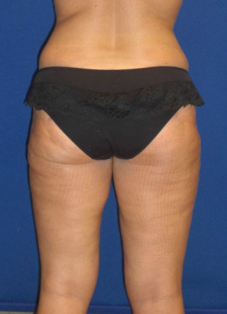 After This woman had an abdominoplasty (tummy  tuck) at the same time as liposuction of her hips, waist, and inner and outer thighs.