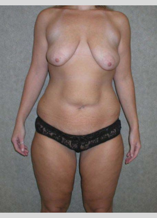 Before This 27 year old woman lost 90 pounds after gastric bypass surgery.  She wanted to have a tighter tummy, fuller and rounder breasts, and smaller thighs.  Dr. Kavali performed an abdominoplasty with liposuction of the hips and waist, a breast augmentation with 339 cc gel implants, a breast lift (mastopexy), and liposuction of the inner and outer thighs.