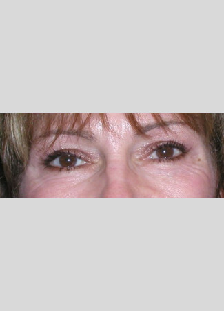 Before This woman was concerned about heavy upper eyelids and underwent an upper blepharoplasty with Dr. Kavali to remove the extra skin.