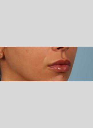 After After 1 syringe of Juvederm Ultra Plus to lips