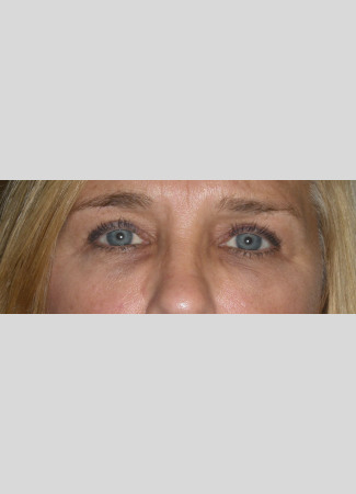Before Upper eyelid blepharoplasty removes the extra skin and fat in the upper eyelid, making the eye appear more open and bright.