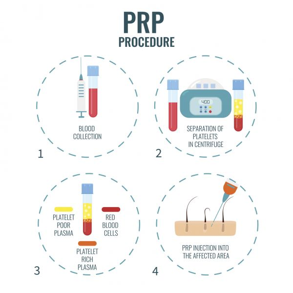 Platelet-Rich Plasma Injections