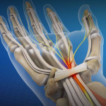 Repetitive Stress and Carpal Tunnel Injuries