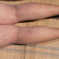 Laser Spider Vein Removal Treatment