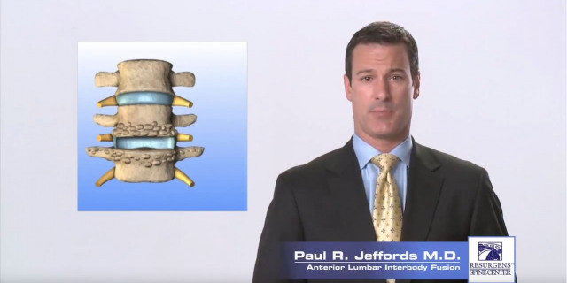 Anterior Lumbar Interbody Fusion
