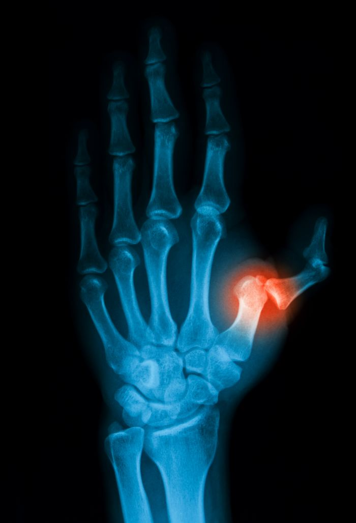 Image for Diagnosing Your Hand Pain With State of the Art Technology