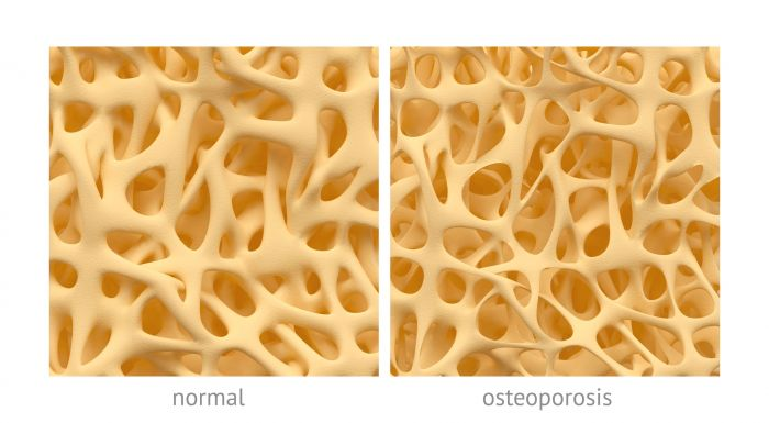 Image for What is osteoporosis?